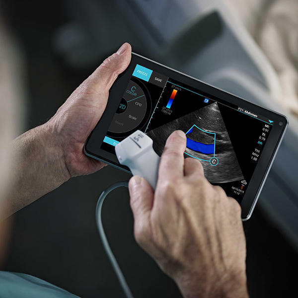 SonSite iViz portable ultrasound