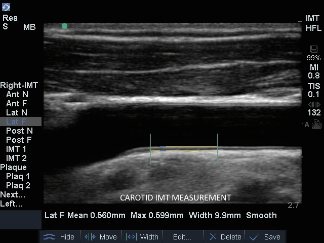 Home Ultrasound Machine >> Carotid IMT Measurement 1 | SonoSite