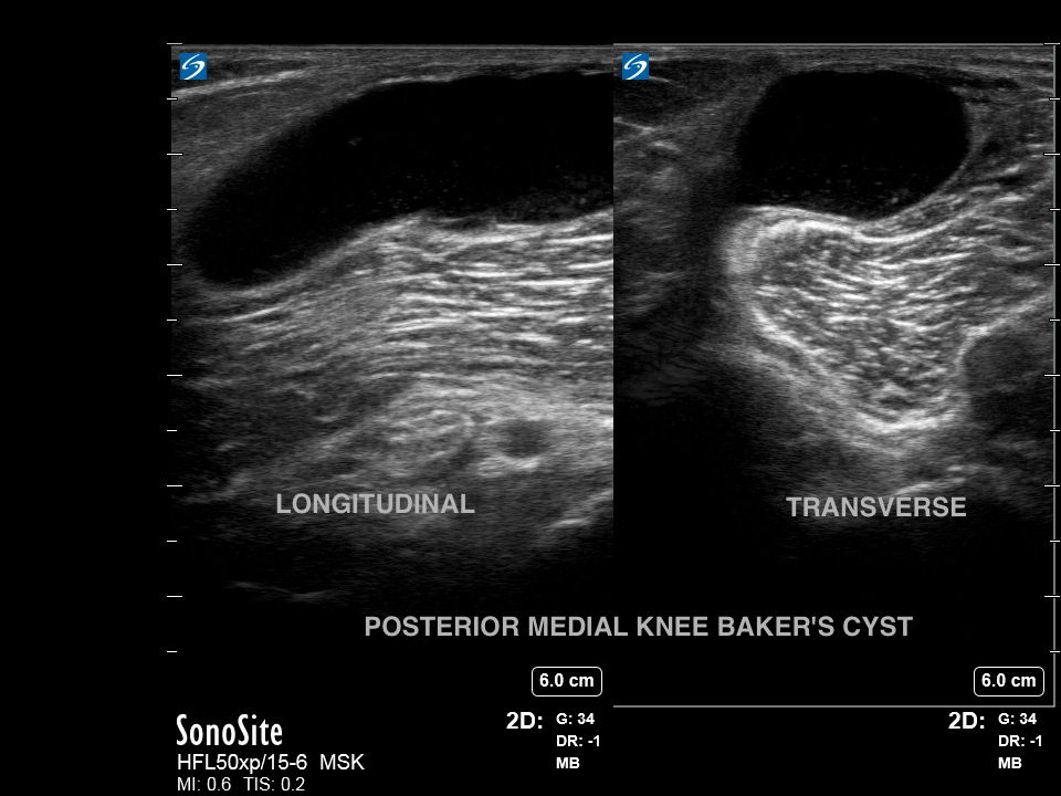 Knee Bakers Cyst Dual Image