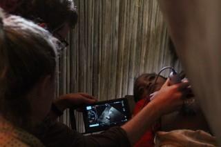 Sonosite handheld ultrasound investigates schistosomiasis in Madagascar