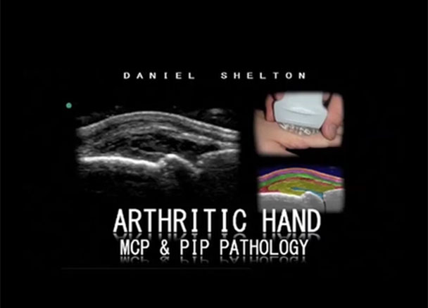 Case Arthritic Hand Mcp Pip Pathology Sonosite