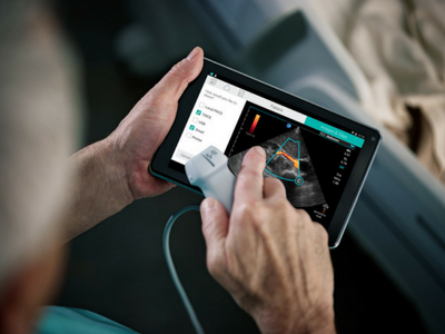 Sonosite ultrasound machines feature intuitive user interfaces and familiar tactile controls
