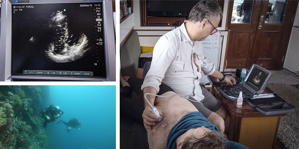 Lung scan on Sonosite ultarsound machine, deep sea divers by coral reef, Dr. Balestra scanning a patient with a Sonosite ultrasound machine