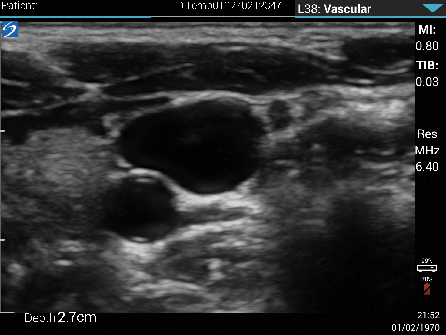 iViz L38v Internal Jugular Vein