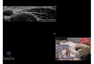 clinical ultrasound images and videos | us | sonosite, Muscles