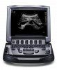 Ultrassom Portátil Sonosite M-Turbo Frente